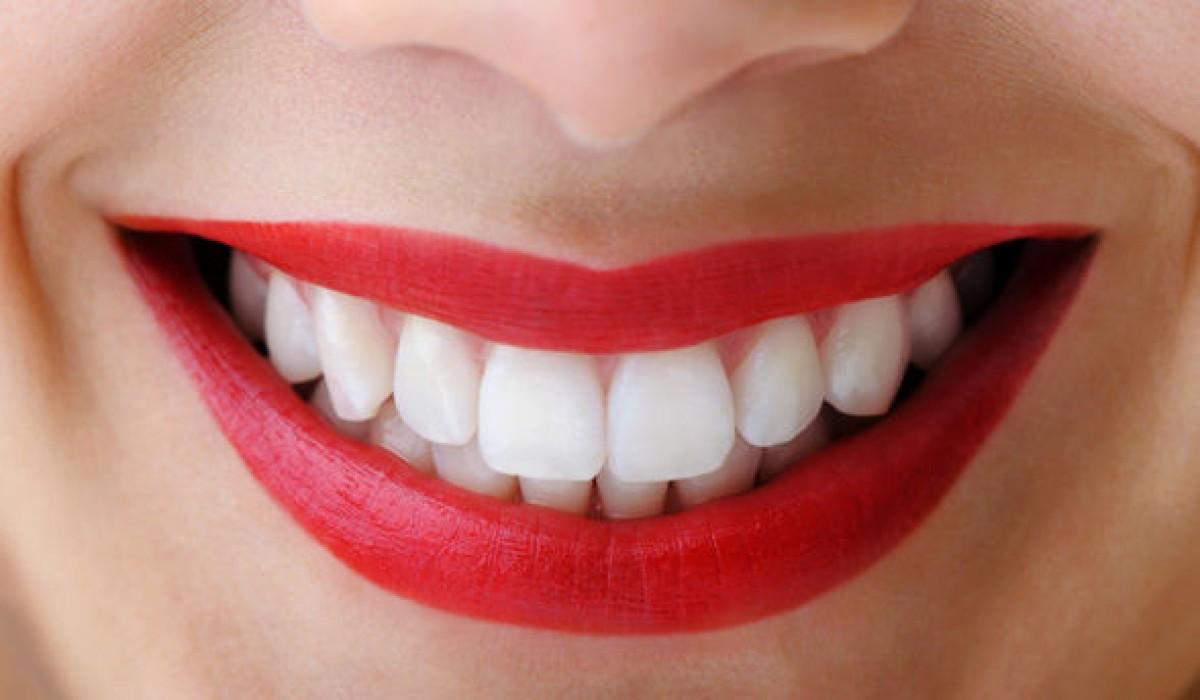 dental-treatments-in-kochi-at-low-cost_1