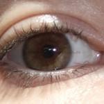 Cum să îți corectezi vederea de astigmatism și să ai zero dioptrii?