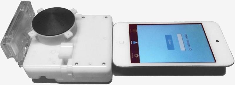 Cu un dispozitiv pentru smartphone de 34 USD aflăm în 15 minute dacă avem sau nu HIV!