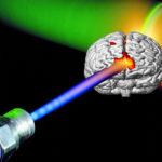 Cerebrochirurgia cu laser dă rezultate bune în cazul tumorilor inoperabile