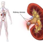 Un nou tratament pentru pietrele la rinichi