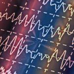 Neurologii au conceput un dispozitiv care ne permite să controlăm cu mintea instrumentele muzicale