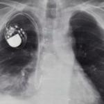 Academia Regală de Ingineri a avertizat că hackerii pot ataca stimulatoarele cardiace ale pacienților