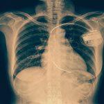 Vulnerabilitatea în mii de defibrilatoare implantabile Medtronic ar putea permite hackerilor să preia controlul dispozitivelor