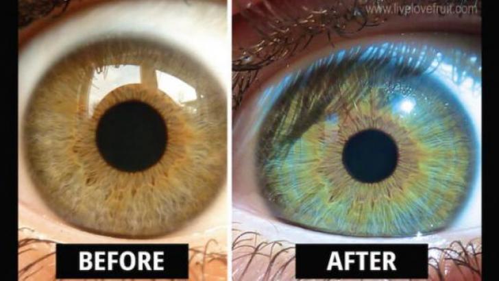 Dieta vegană a unei femei i-a schimbat culoarea ochilor!